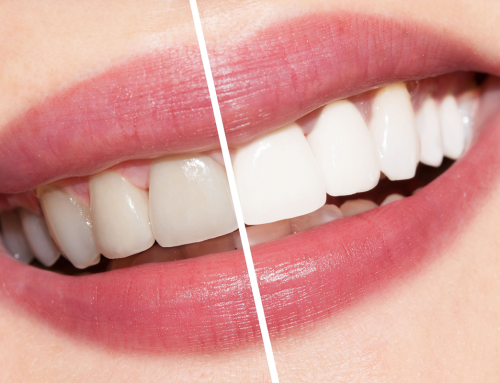 What are the Benefits of Teeth Whitening?