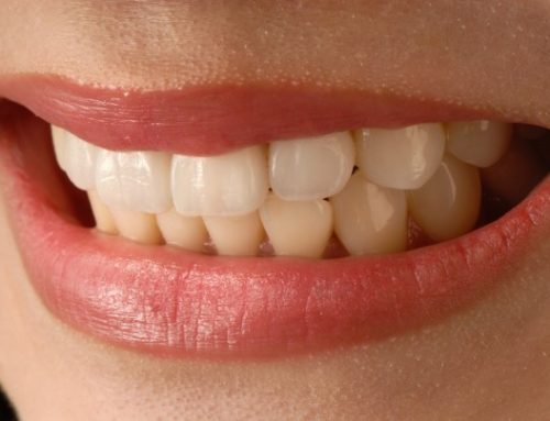 Dental Braces or Invisalign Braces ~ Which Should You Choose?