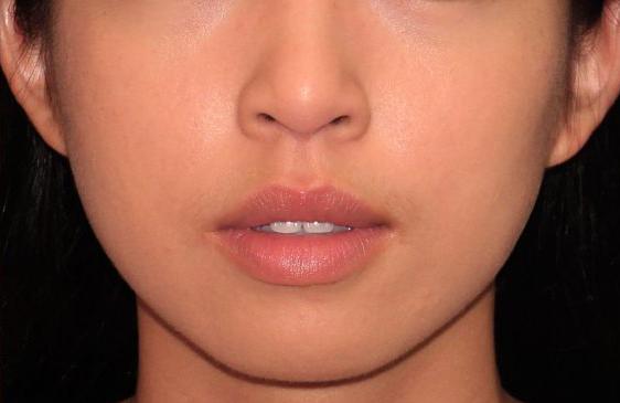 Facial appearance after facial grinding treatment.