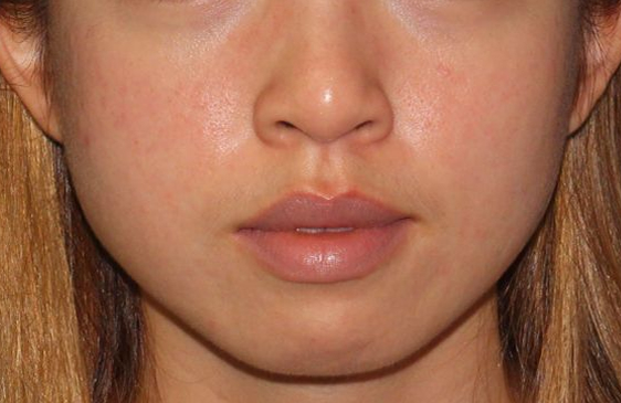 Facial appearance before facial slimming treatment.