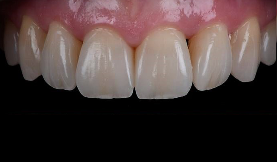 Teeth after a cosmetic bonding procedure.