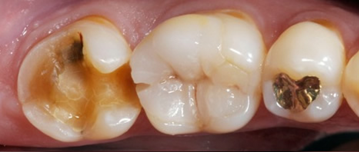 An example of damaged teeth without tooth crowns.