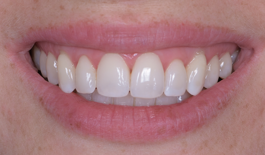 After treatment administered by Invisalign dentist, Dr. Chetan Sharma.