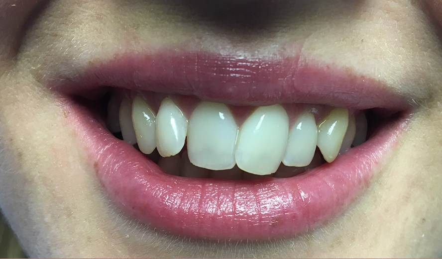 Before treatment administered by Invisalign dentist, Dr. Chetan Sharma.