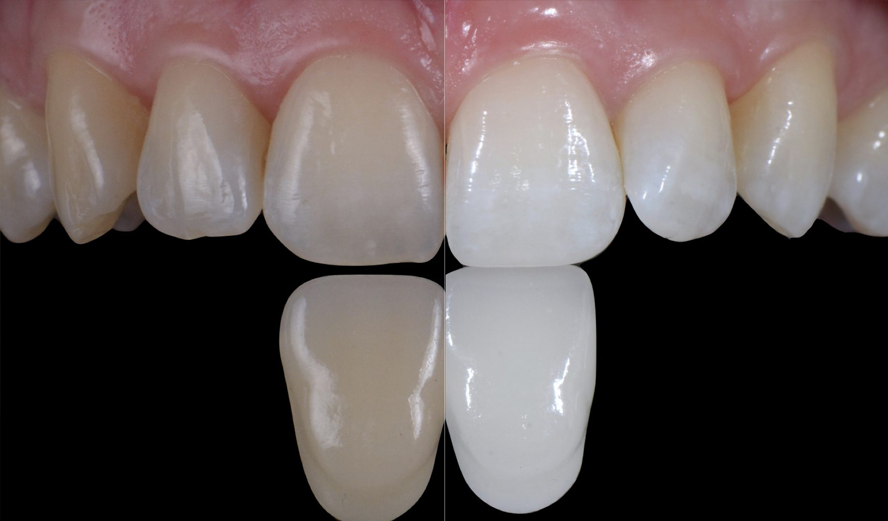 Before and after Boutique teeth whitening treatment Birmingham.