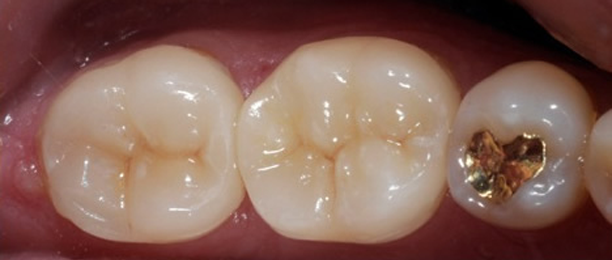 Restored teeth with aesthetic tooth crowns.