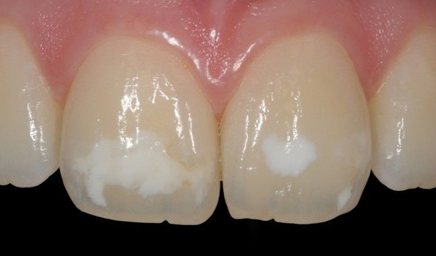 Teeth before Icon White Spot Removal treatment.