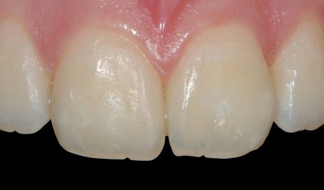 Teeth after Icon White Spot Removal treatment.