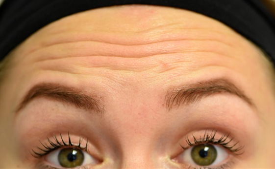 Wrinkles prior to a visit to a botox clinic.